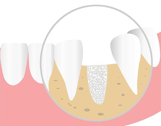 Implant dentaire Pessac