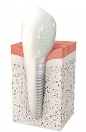 Implant dentaire Charenton-le-Pont