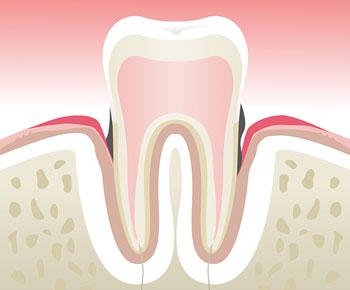 Parodontologie Charenton-le-Pont